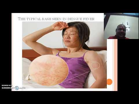 Dengue fever prevention treatment cause symptoms by dr surya prakash (DPh)
