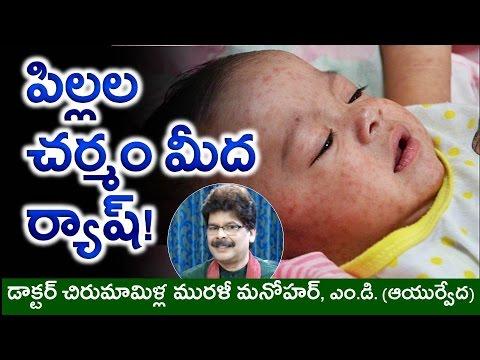 Causes and Ayurvedic Cures for SKIN RASH in CHILDREN in Telugu | చిన్న పిల్లల చర్మం మీద ర్యాష్