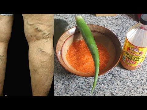 THESE 3 INGREDIENTS IS ALL YOU NEED TO GET RID OF VARICOSE VEINS NATURALLY