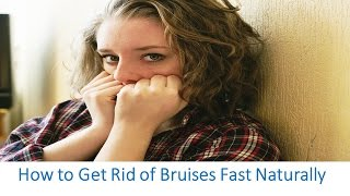 How To Get Rid Of Bruises Fast Overnight Naturally