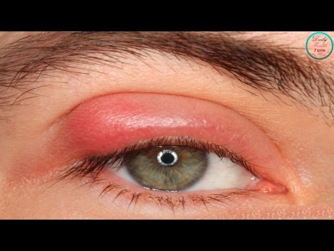 Easy and Safe Ways to Get Rid of Styes Fast at Home