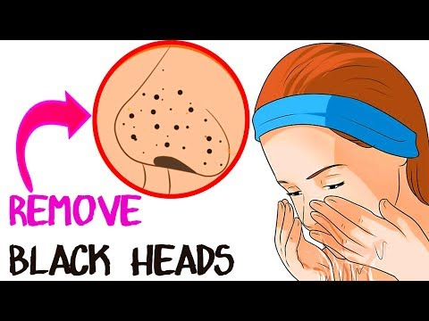 How To Remove Tons Of Blackheads and Whiteheads Instantly! Home Remedies