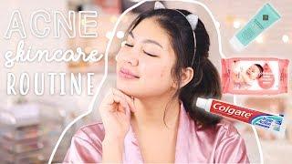 Acne Skincare Routine (taglish Talk-through!!)   Product Giveaway!! | Janina Vela