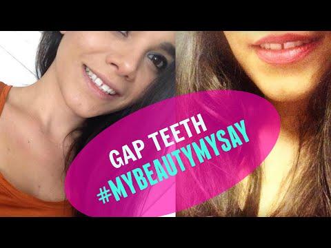SEXY GAP TEETH #MyBeautyMySay DOVE