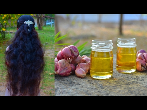 DIY Onion Hair Oil For Fast Hair Regrowth & Stop Hair Fall | Get Thick, Long, Healthy Black Hair