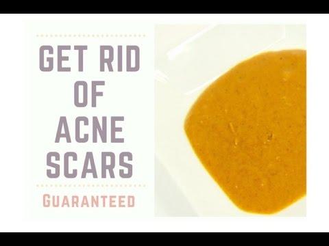 Get Rid of Acne Scars Guaranteed