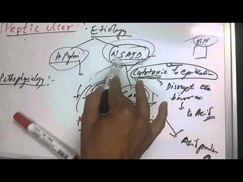 Peptic Ulcer 3 of 5 (Pathophysiology)
