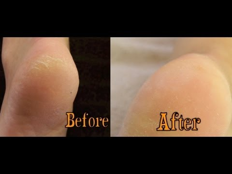 Callused and Cracked heels treatment - Salon Secrets