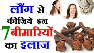 लौंग के फायदे Clove Benefits in Hindi