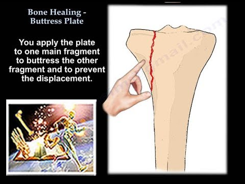 Bone Healing, Buttress Plate  - Everything You Need To Know - Dr. Nabil Ebraheim