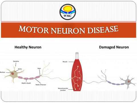 MOTOR NEURON DISEASE (MND)