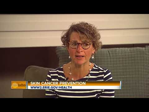 Erie County Health Commissioner Talks About Preventing Skin Cancer
