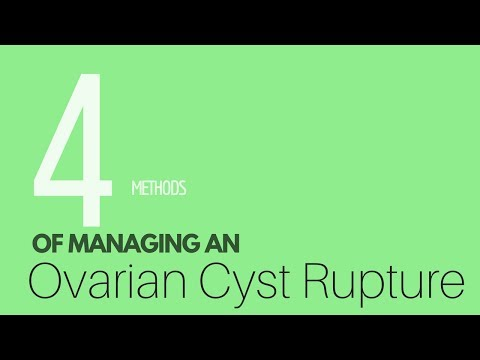4 Ways To Treat And Manage An Ovarian Cyst Rupture  |  Ruptured Cysts Treatment