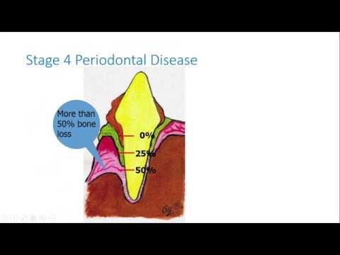 What is Periodontal Disease in my Pet?