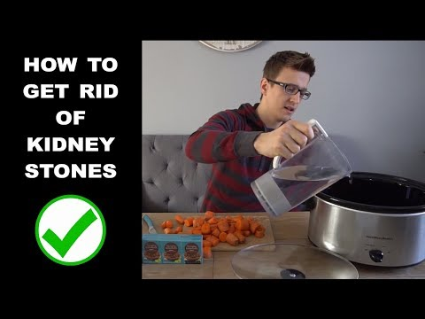 How to Get Rid of Kidney Stones!