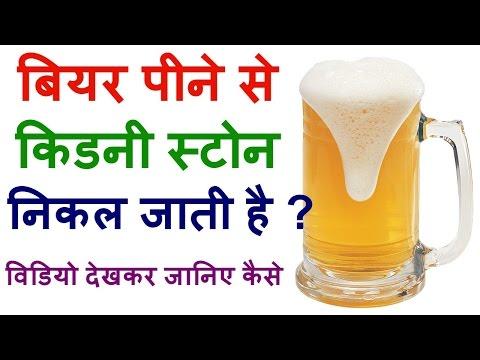 बियर पीने से निकल जाता है किडनी स्टोन ? Can Beer Help In Removing Kidney Stone In Hindi