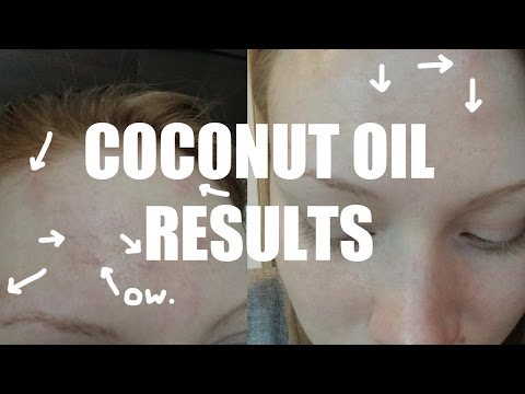 Coconut Oil RESULTS!