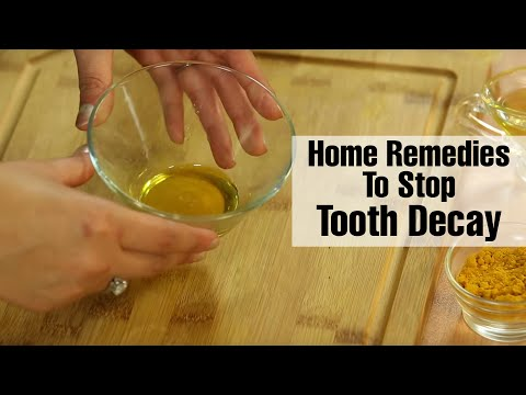 Natural TOOTH DECAY TREATMENTS | How To Remove Tooth Decay At Home