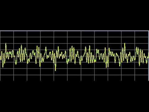 Ehlers-Danlos Syndrome - Rife Frequencies