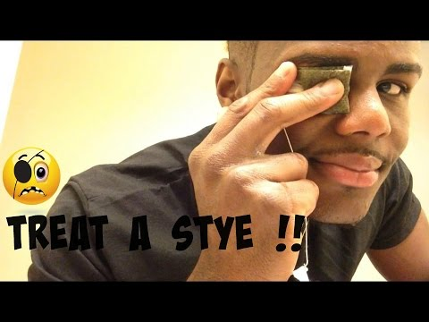 How To: treat a stye in your eye !! | Twhy Baby