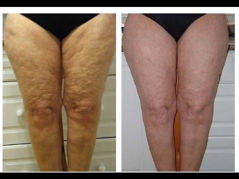 tratamiento para celulitis y flacidez en piernas