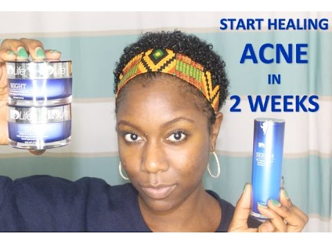Heal Your Acne in 2 Weeks