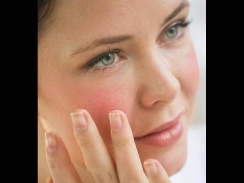 Top 5 Home Remedies for sensitive skin