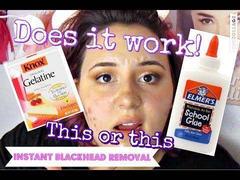 INSTANT BLACKHEAD REMOVER | Ashley Chadwick