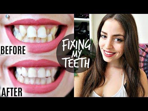 GETTING MY TEETH FIXED! Porcelain Veneer & Bridge Crown Before & After + Review