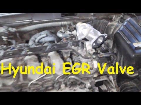 Hyundai Sonata EGR problem / EGR Valve replacement Hyundai /EGR Cleaning