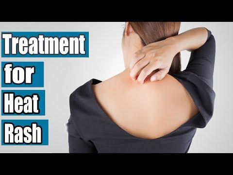 How to Get Rid of a Rash | Heat Rash Treatment