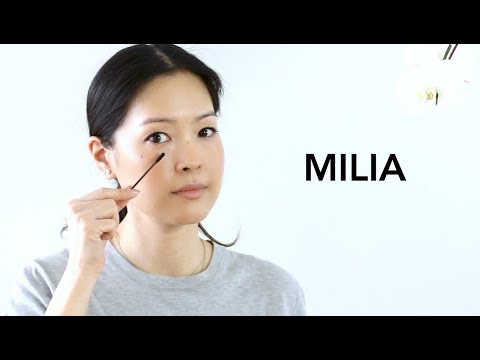 Milia - How to Treat & Prevent | Best Eye Products