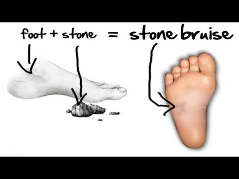 Stone Bruise Foot Pain *HOME Treatment*