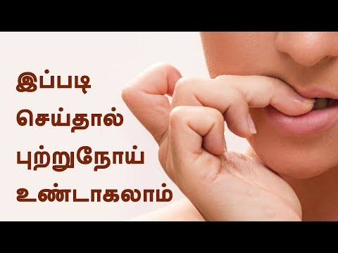 How to stop biting nails ? - Harmless Nail Biting Habits That Can Cause Cancer - Tamil Health Tips