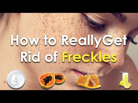 How to Really Get Rid of Freckles