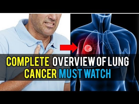 Complete Case Study of Lung Cancer No Body Can Tell You