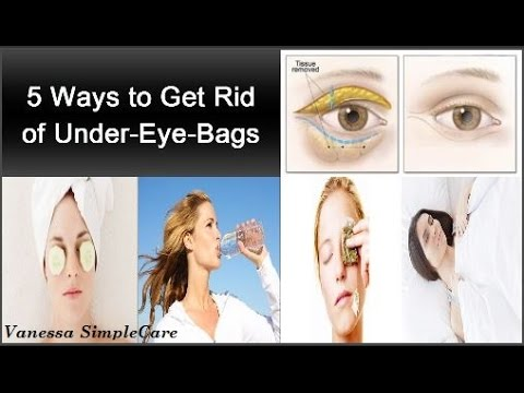 How To Get Rid Of Under-Eye-Bags Fast: 5 Natural Amazing Techniques To Get Rid Of Under Eye Bags