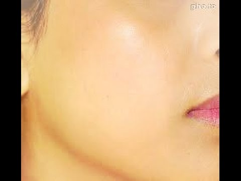 How to Get Crystal Clear Spotless Skin Tone,How to Remove Black Spots & Dark Spots on Face