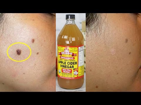How To Remove Moles Naturally With Apple Cider Vinegar