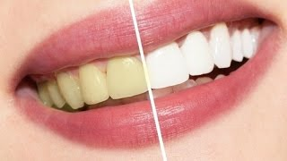 How To Have Natural White Teeth In 2 Minutes Works 100