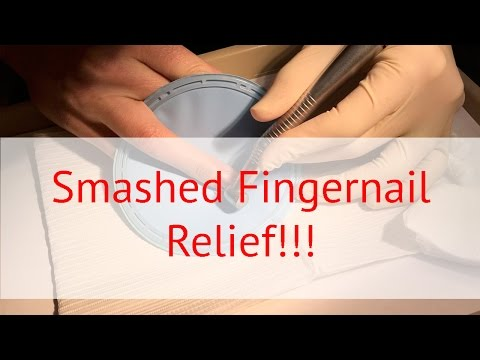 Smashed finger relief!!  How to drain blood from under a fingernail...at the dentist's office!