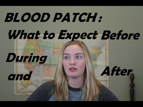 Blood Patch: What to Expect Before, During, and After!