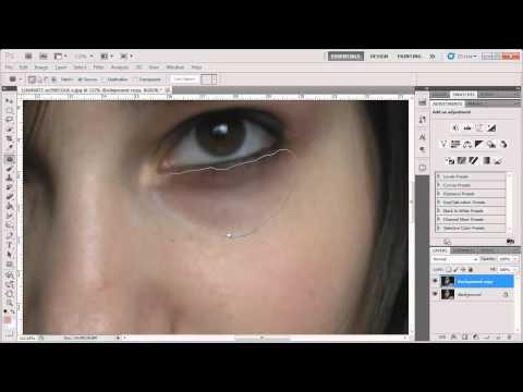 Photoshop - Remove Dark Circles Under Eyes