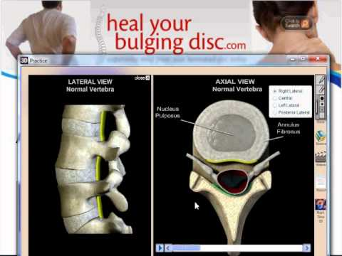 The Difference Between A Bulging Disc, Herniated Disc, Ruptured Disc, And Degenerative Disc Disease