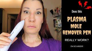 Plasma Mole Remover Pen Review