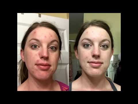 Neutrogena Oil-Free Acne Wash Cream Cleanser Micro Clear Review With Before and After