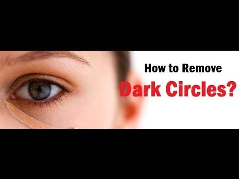 How to Remove Dark Circles Naturally?