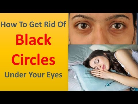 How to Get rid of Black Circles Under Your Eyes|Get the beauty sleep