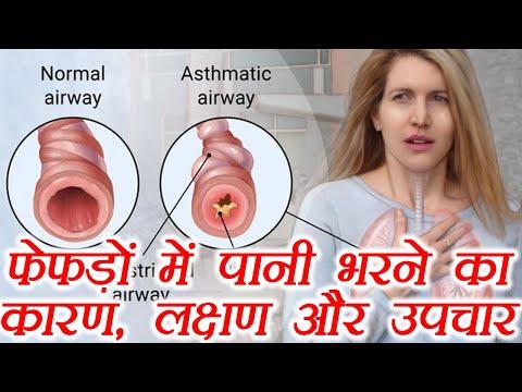 Lungs Problem & Treatment: फेफड़ों में पानी भरने का कारण, लक्षण और उपचार | Boldsky