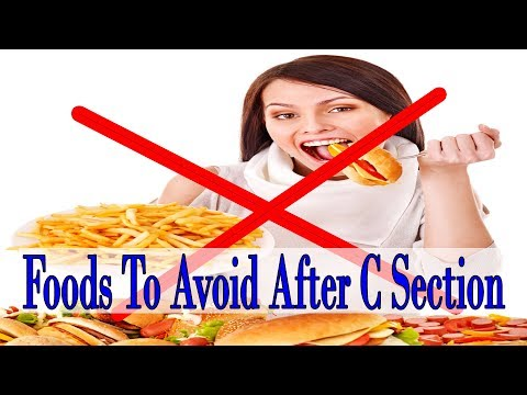 8 Common Foods To Avoid After C Section To Stay Fit !